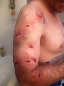 Mordiscos y arañazos de la osa en el cuerpo de Orr / Facebook