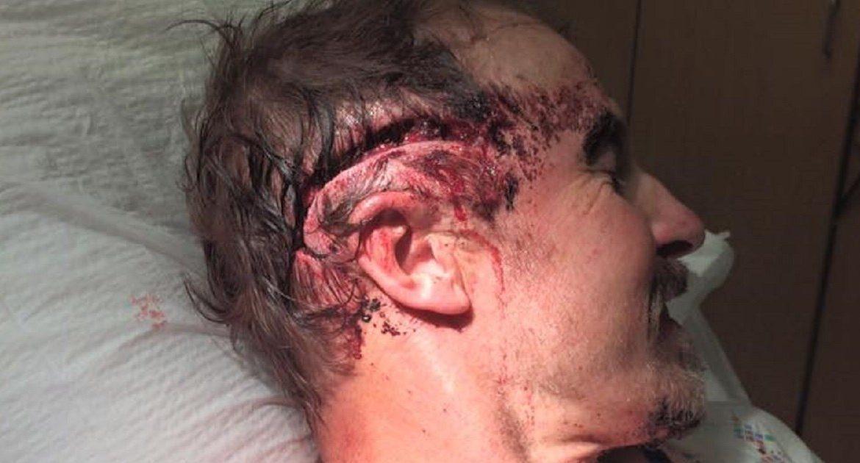 Una osa ataca a un cazador y le provoca unas terribles heridas