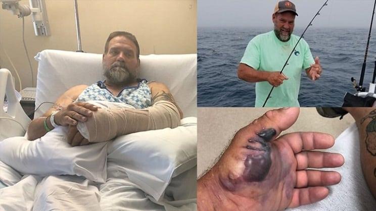 Un pescador se clava un anzuelo y casi pierde el brazo