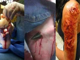 Lesiones de caza / Fotografía: http://thehuntingnews.com