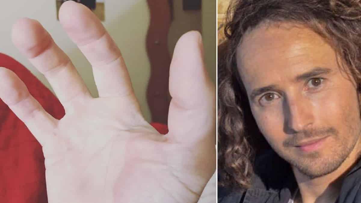 Un exconcursante de 'Gran Hermano' revela que el dedo que perdió fue en un accidente de caza
