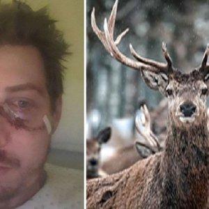 Un venado destroza la cara a un cazador en una batida