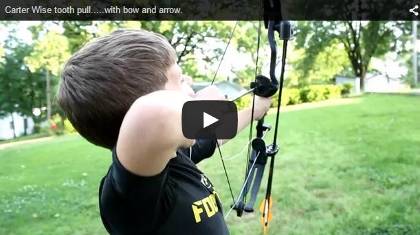 Un niño se arranca un diente ¡con un arco y una flecha!