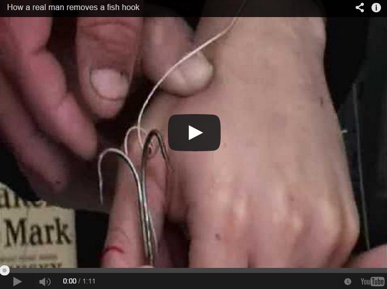 Extraen el anzuelo clavado en la mano de un pescador