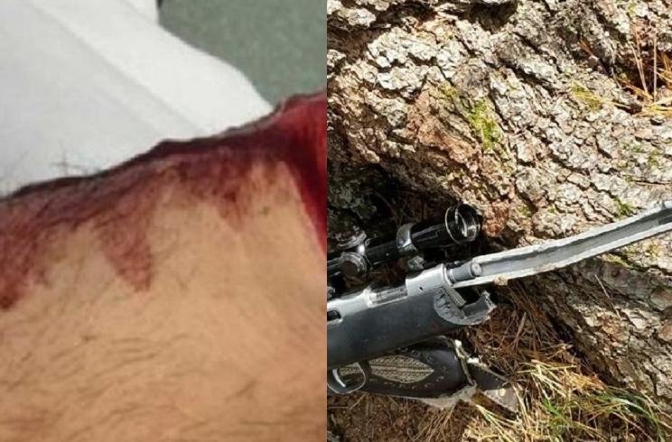 El rifle de un cazador explota cuando disparaba a una pieza