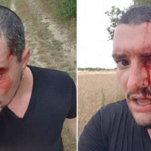 Un águila ratonera ataca y hiere en la cabeza a un joven que hacía deporte
