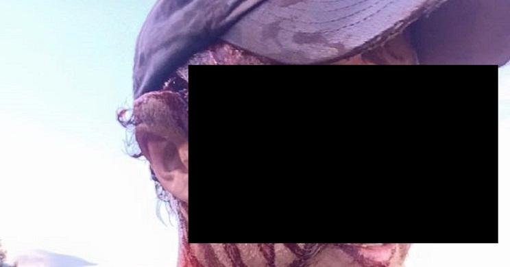 Este cazador muestra las graves heridas sufridas tras ser atacado por un oso
