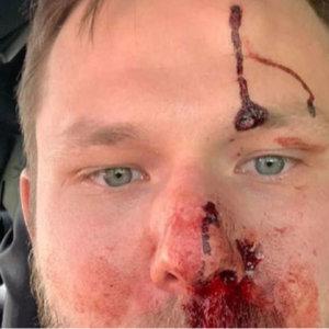 Recibe un tiro en la cara de otro cazador y sube su foto para concienciar sobre las normas de seguridad