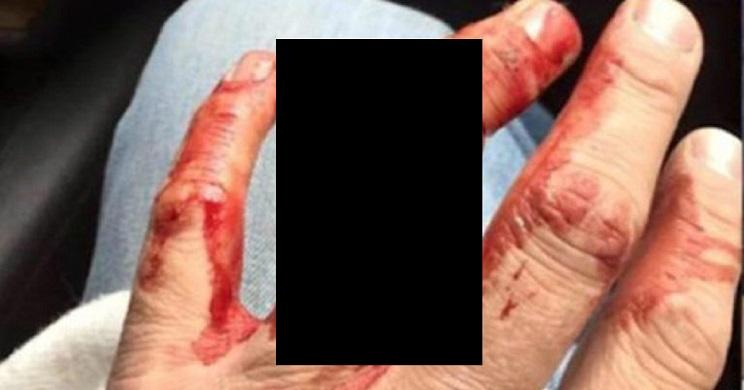 Un cazador sufre un aparatoso accidente al engancharse su anillo de bodas