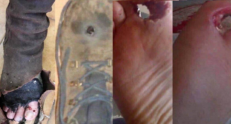 Peligrosos accidentes al apoyar un rifle sobre el pie