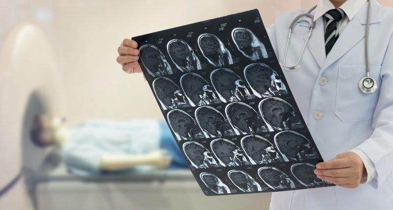 estudio-cerebro-caza