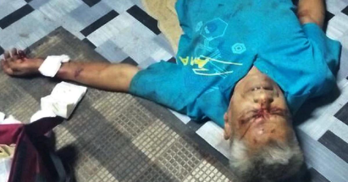 Un jabalí ataca a un septuagenario y le provoca cortes en cara, brazos y piernas