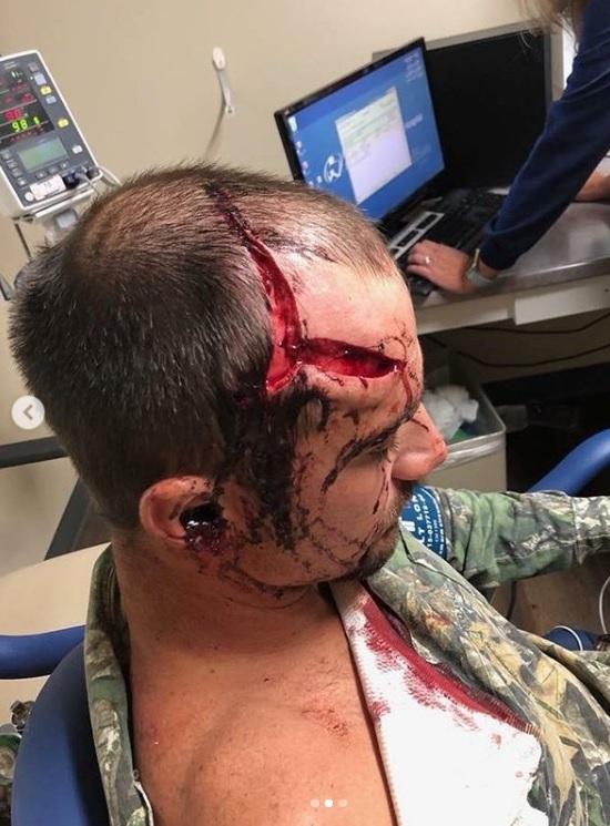 herido cazador ciervo