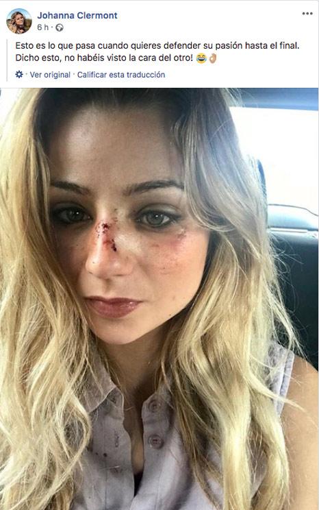 Post subido por Johanna Clermont tras la agresión.