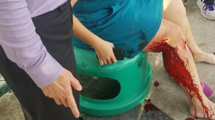 mujer herida por jabalí