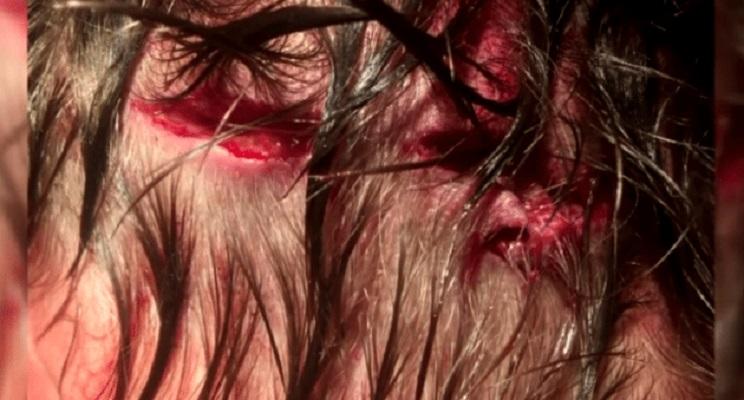 Un joven de 19 años se despierta al oír cómo un oso mordía su cráneo