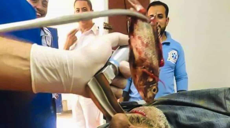 Un pez se introduce por accidente en la garganta de un pescador y se lo sacan vivo