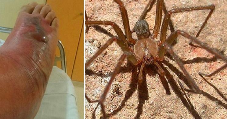 Amputan una pierna a una mujer tras la picadura de una araña
