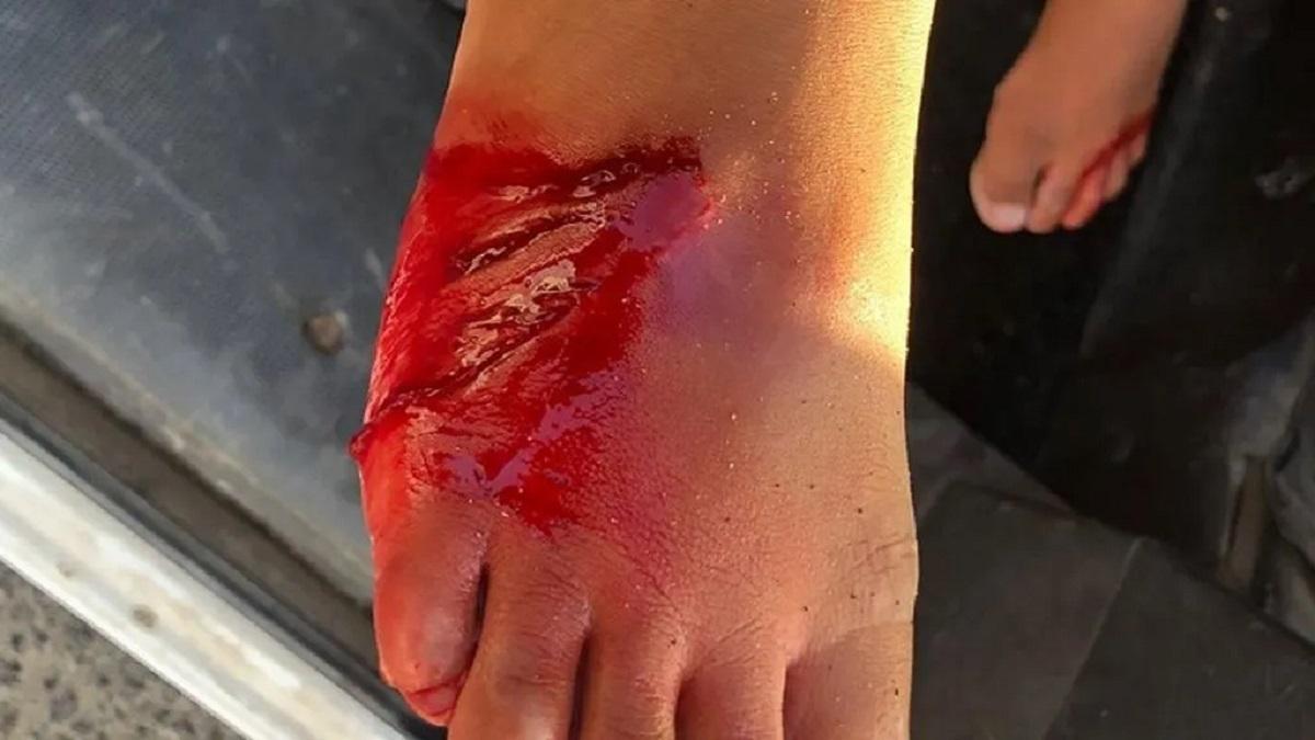 Un tiburón hiere en el pie a un niño de 6 años en Lanzarote